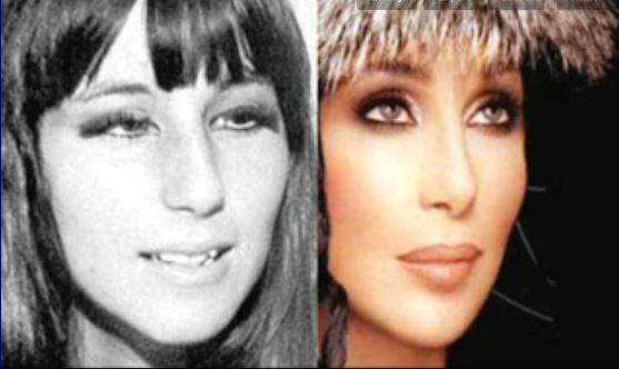 Chanteuse_Cher-avant-et-après