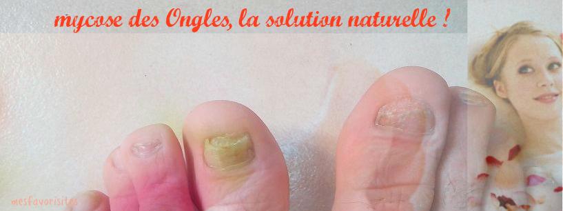 Mycose-des-ongles-la- solution-naturelle