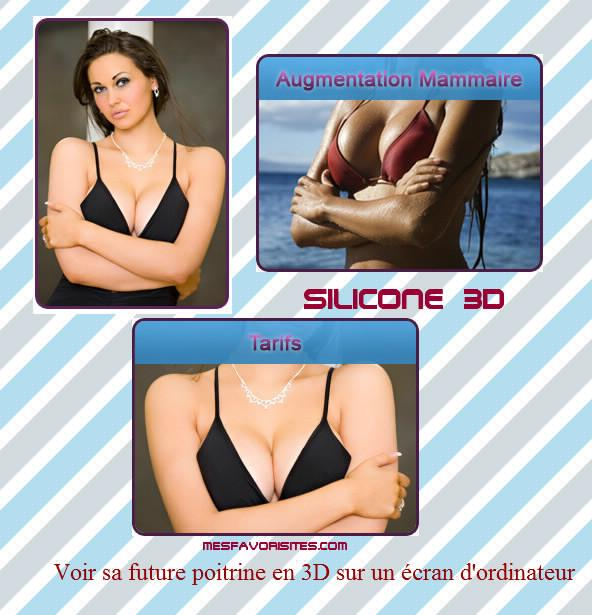 SILICONE-3D 2